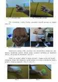 Imagine document Recuperarea sechelelor post accident vascular cerebral prin mijloace kinetoterapeutice la persoane de varsta a III-a