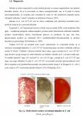 Managementul Riscurilor in Biotehnologie si Industria Alimentara - Escherichia Coli O157 - H7
