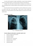 Imagine document Preventie in tuberculoza pulmonara cronica
