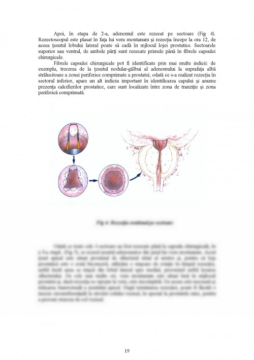 Hiperplazia prostatei tratament ceaiuri