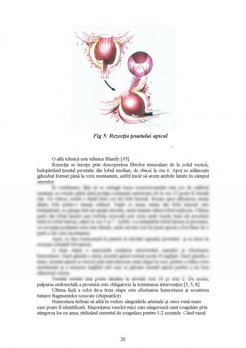 Rezecția transuretrală (RTU) pentru adenom de prostată   Proceduri medicale